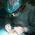Chirurgia vascolare 1